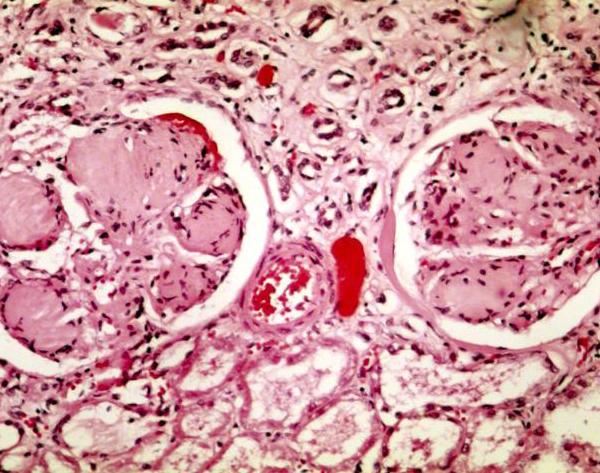 Osteodistrofia uremica